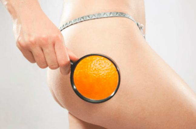 Avancées en Traitements Anticellulite | Forever Institut